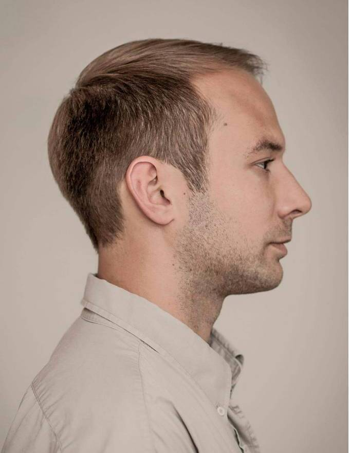 Magnificent 40 Hairstyles For Balding Men Little Secrets To Make You Look Short Hairstyles Gunalazisus